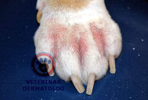 Симптомы атопического дерматита между пальцев