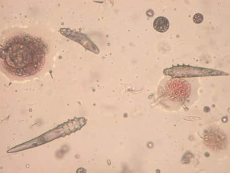 Соскоб кожи и обнаруженный клещ вызывающий демодекоз